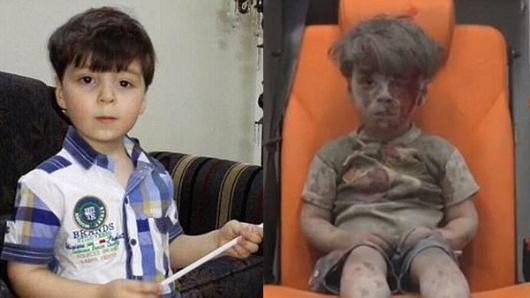 پدر عمران، کودک سوری که عکسش به صورت گسترده در رسانههای عربی و جهانی منتشر شده بود، فاش کرد که پیشنهادهای مالی وسوسه انگیزی به وی شده بود تا بگوید آنچه که برای خانوادهاش رخ داد، ناشی از حملات هوایی جنگندههای سوری و روسی بود.